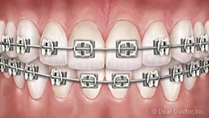 metal-braces